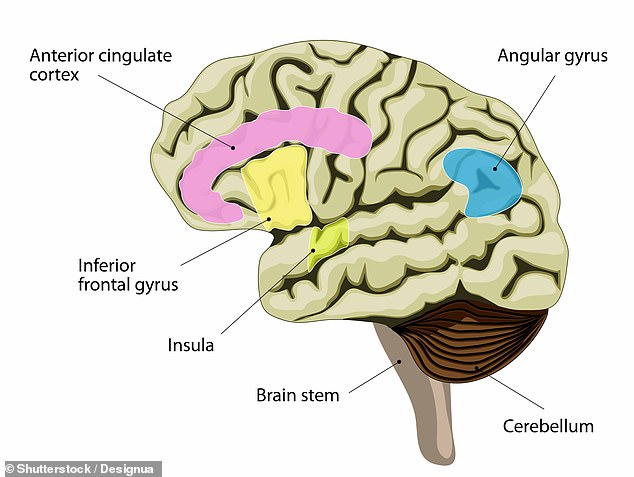 Researchers fromJohns Hopkins Hospital in the US found people with schizophrenia had lessglutamate and glutathione in the anterior cingulate cortex in their brain (highlighted in pink)